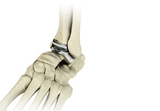 Ankle Joint Replacement/Total Ankle Arthroplasty
