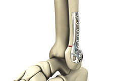 Internal and External Fixation of Foot and Ankle Fractures